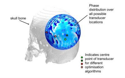 Stimulating the brain with ultrasound: treatment planning – Joseph Blackmore