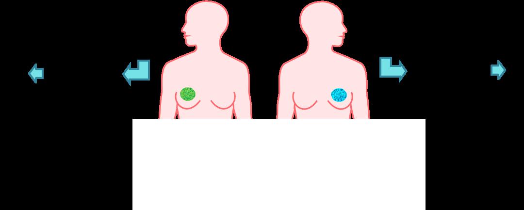 2pBA2 – Medical ultrasound imaging for the detection of netrin-1 in breast cancer  – Jennifer Wischhusen