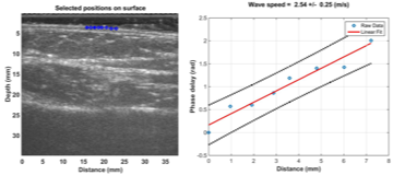 1pBA11 – An ultrasound surface wave elastography technique for noninvasive measurement of scar tissue – Boran Zhou