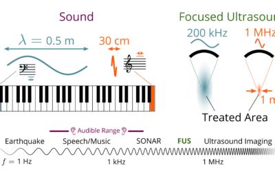 2pBAc – Targeting Sound with Ultrasound in the Brain – Scott Schoen Jr