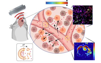 3aBA9 – Ultrasound mediated thermal stress augments mass and drug transport in brain tumors  –  Costas Arvanitis
